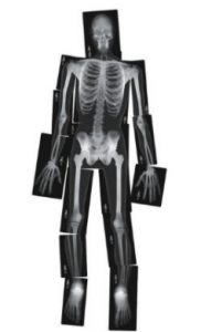 Human Body Skeleton xrays for kids